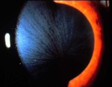 cornea verticillata