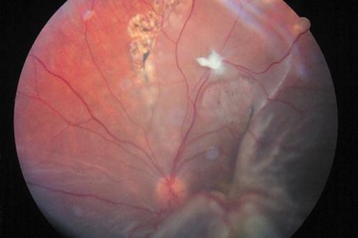 Descolamento de retina tracional