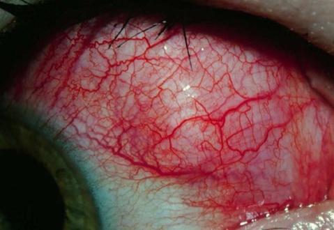esclerite nodular